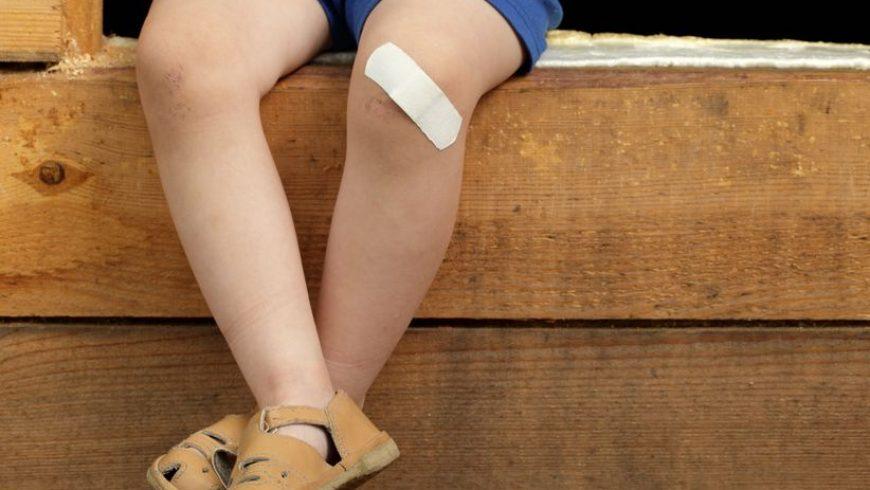 Apitoxina y Heridas